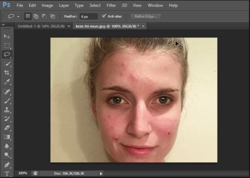 Cách xóa mụn bằng Photoshop