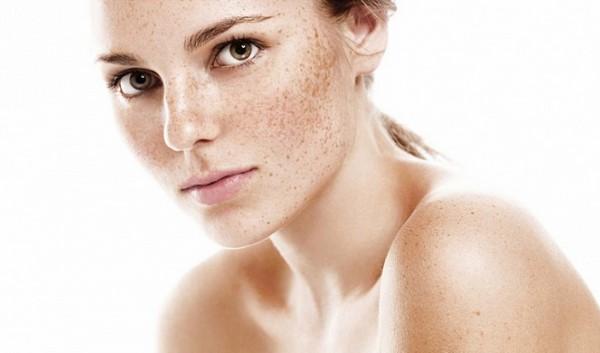 cách trị đốm nâu trên mặt