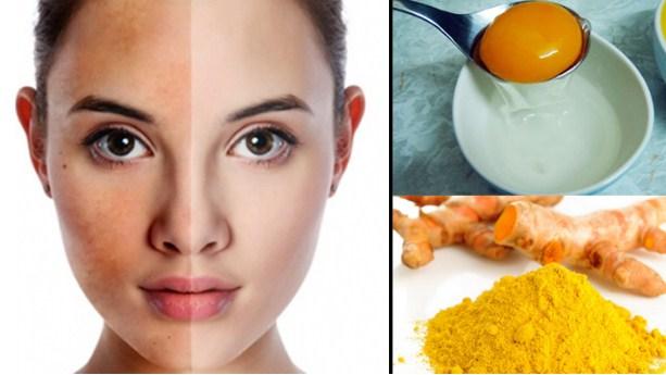 Hỗn hợp tinh bột nghệ và lòng trắng trứng làm sáng da