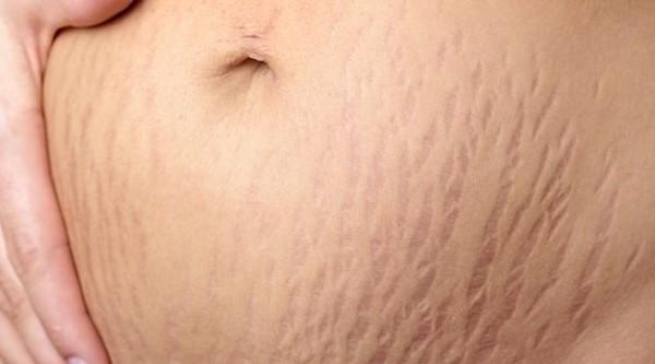 Da của bà bầu xuất hiện những vết rạn ở bụng